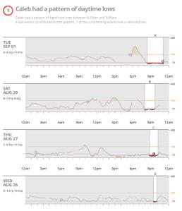Low Trend Dexcom CLARITY